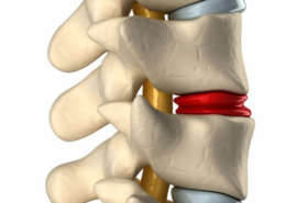Regenerative Treatments for Spinal Conditions